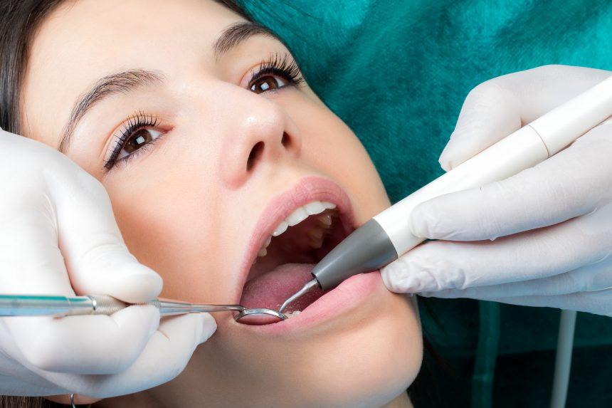 Fogkőeltávolítás, fogágybetegségek kezelése