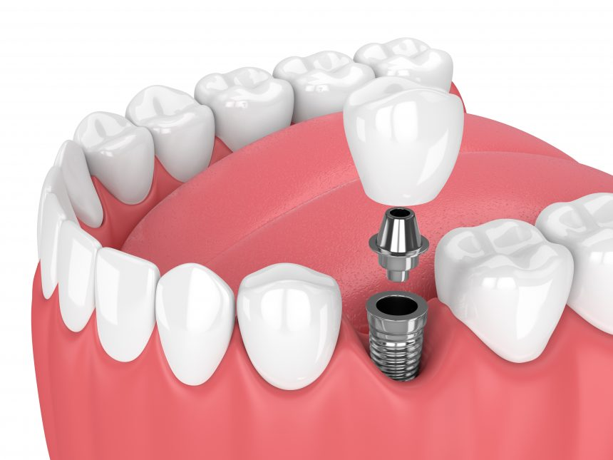 Szájsebészet, implantológia